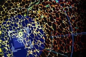 Lsd1, angesetzt auf weiße Fettzellen (rot markiert), verhindert das Altern von beigem Fettgewebe (gelb markiert). Foto credit: Delphine Duteil