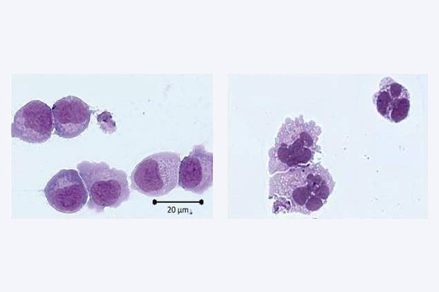 AML-Zellen vor (links) und nach kombinierter, epigenetisch wirksamer Behandlung mit einem Histon-Demethylase (LSD1)-Inhibitor und Retinsäure (in vitro-Experiment). Bilder credit: Dr. T. Schenk und Kollegen