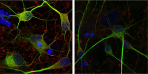 These human motor neurons have been immunostained to highlight the cell membrane and regions containing DNA and Hsc70/HSPA8 in green, blue and red, respectively. Right: Normal human motor neurons. Hsc70/HSPA8 also lines the membranes of these cells, tinting them yellow as the red immunostain is layered with green. Left: Human motor neuron derived from ALS patient. (Image credit: Rita Sattler/Barrow Neurological Institute)