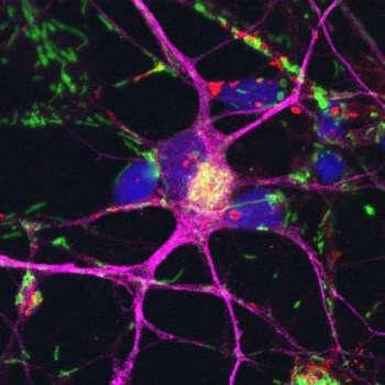 Nervenzellen (lila), die aus Stammzellen von Parkinsonpatienten entwickelt wurden. Die Zellkerne sind blau, die Mitochondrien grün gefärbt. Image copyright: Deleidi, 2018