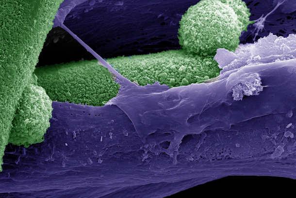 Rasterelektronenmikroskopische Aufnahme: Die mineralische Phase – dem Mineral im Knochengewebe entsprechendes Hydroxyapatit – ist grün, das von mesenchymalen Stammzellen gebildete Gerüst lila eingefärbt.Bild credit: Melika Sarem, Vincent Ahmadi, Prasad Shastri
