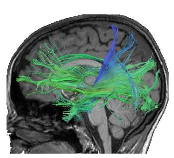 Faserverbindungen im Gehirn, die durch den Hippocampus verlaufen und mit dem Abruf von numerischen Fakten assoziiert sind. Medienbasierte Trainings erhöhten die Stärke und Leitfähigkeit von Fasern, die mit dem Langzeitgedächtnis verbunden sind. Abbildung credit: Leibniz-Institut für Wissensmedien (IWM)