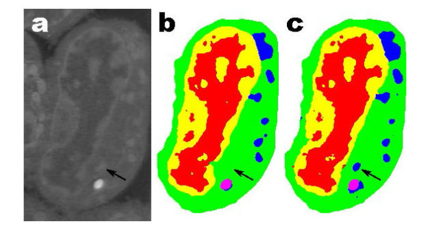 Slice of mouse llymphoblastoid cells. Raw data (a): corresponding manual segmentation (b) and output of an MS-D network with 100 layers (Data from A.Ekman, C. Larabell, National Center for X-ray Tomography)