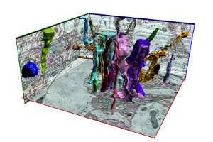 Rekonstruiertes Bild, das mit dem U-Net-Plugin erstellt wurde. Bild Quelle: Falk
