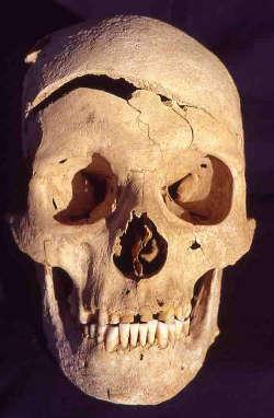 Die Wissenschaftler erhoben Daten von 15.000 menschlichen Skeletten aus mehr als 100 Regionen Europas: hier ein Schädel mit deutlich erkennbarer Hiebverletzung. Image credit: © Joachim Wahl, Landesdenkmal Amt im Regierungspräsidium Tübingen