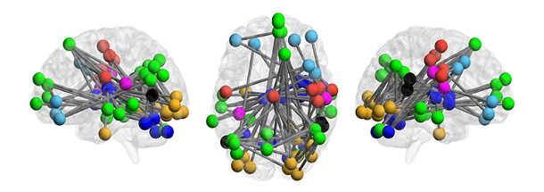 Brains of people at risk of psychosis exhibit a pattern that can help predict whether they will go on to develop full-fledged schizophrenia, a new Yale-led study shows. Image credit: Yale University